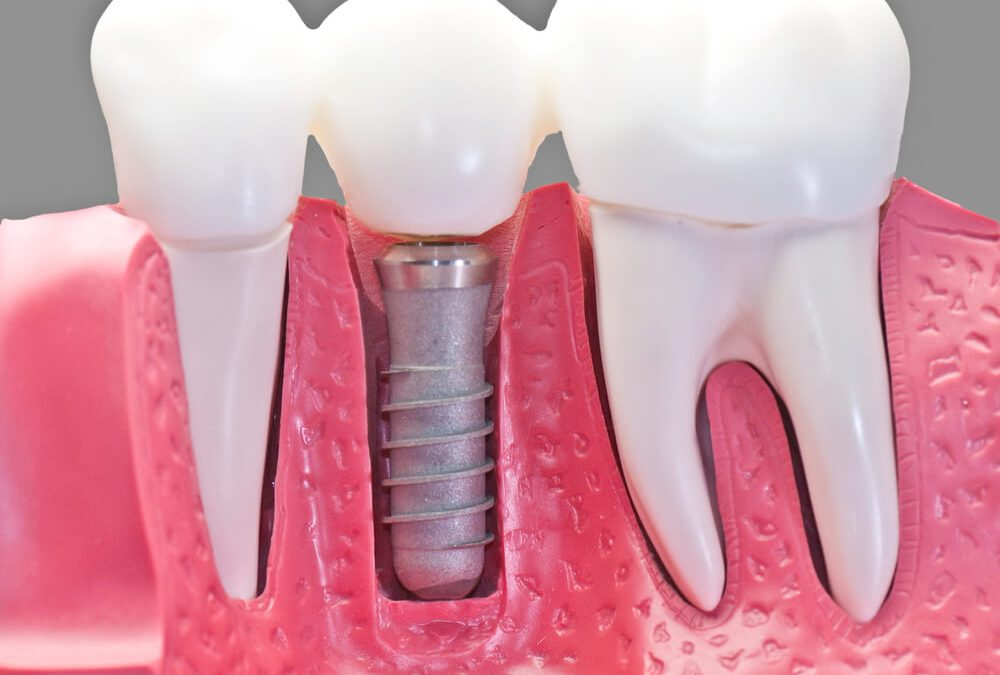 Will Dental Implants Really Work If My Teeth Fell Out?