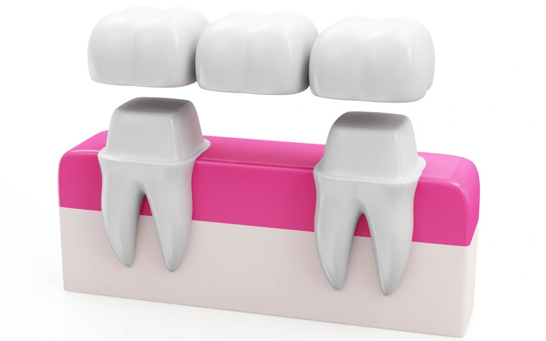What Does a Dental Bridge Do?