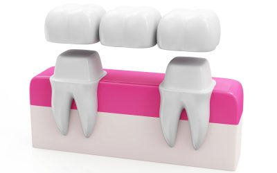What Does a Dental Bridge Do?